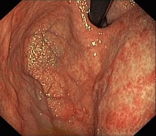 Лечение язвенного гастрита