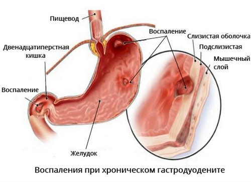 Хронический гастродуоденит