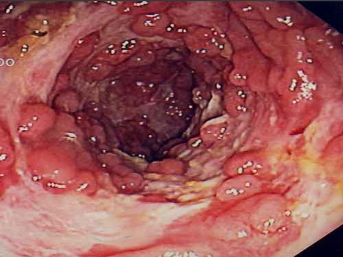 Спастический колит кишечника