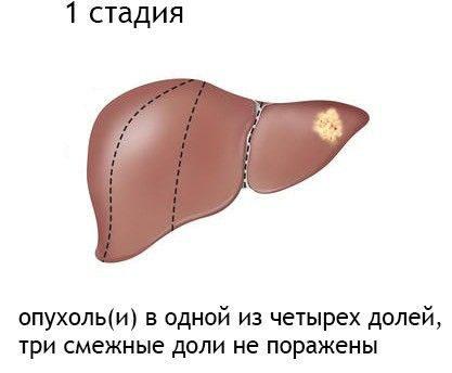 Стадия рака 1