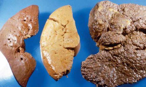 Формы и стадии гепатоза