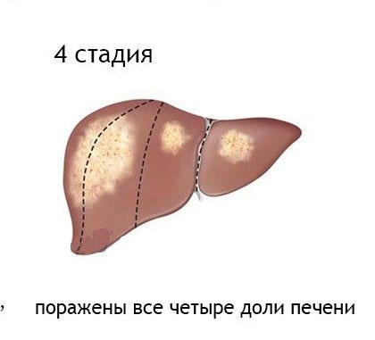 Стадия рака 4