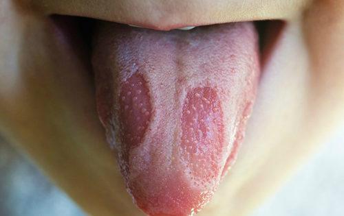 Стоматит на языке