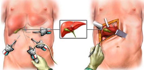 Методика проведения лапароскопии жёлчного пузыря