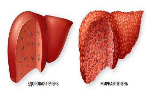 Как выглядит жировой гепатоз