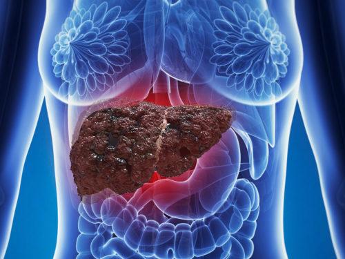 Жировой гепатоз (стеатоз печени)