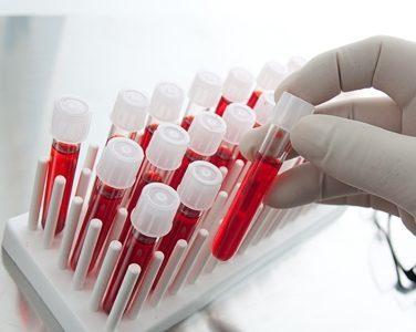 Общий и биохимический анализ крови