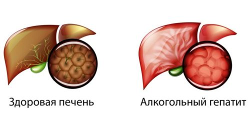 Алкогольный гепатит - заболевание в большинстве случаев перерождается в цирроз