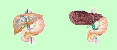 Варикоз пищевода и цирроз