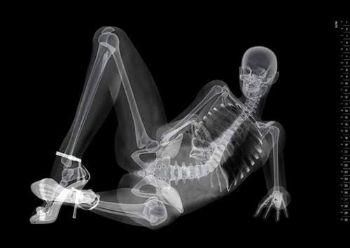 Рентгенография пищевода: основные показания и способ проведения