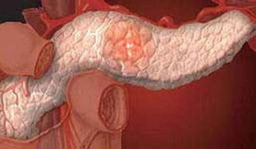 Что такое панкреатит