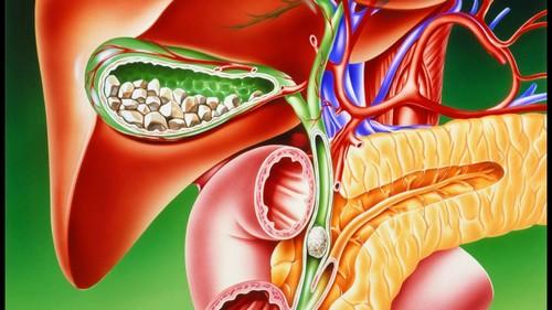 Камниподжелудочнойжелезы – опасность заболевания