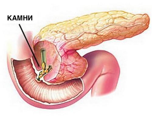 Начало камнеобразования в поджелудочной железе сопровождают симптомы панкреатита
