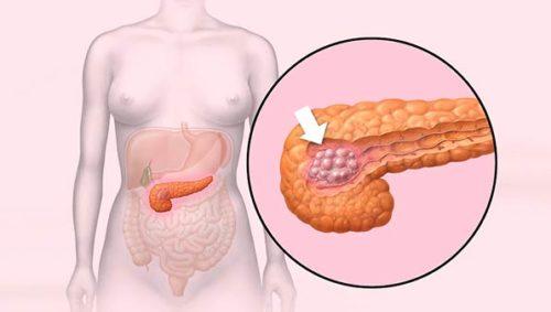 Характеристика и методика лечения некроза поджелудочной железы