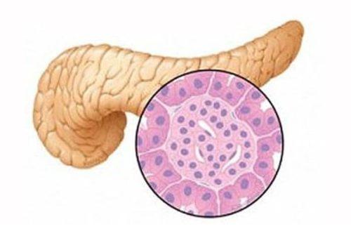 Описание и патологические изменения в паренхиме поджелудочной железы