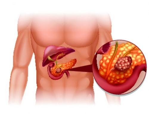 Панкреатит – воспаление поджелудочной железы