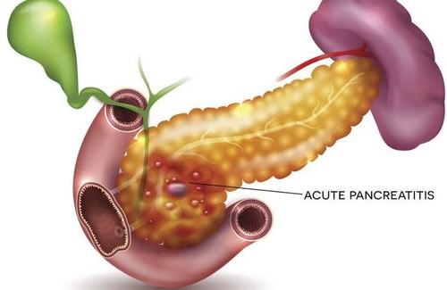 Панкреатит является воспалением в поджелудочной железе