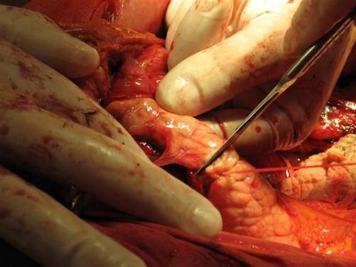 Панкреатэктомия